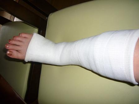 9月7日、骨折2