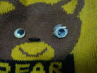 片目が痛い 1