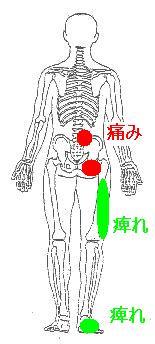 慢性腰痛から始まった下肢の痺れ