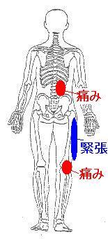 第五腰椎脊椎分離症による腰痛と右膝の違和感