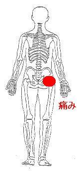 左股関節の歩行時の痛み