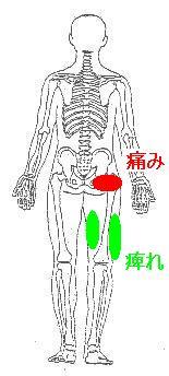 右股関節と膝の痛み