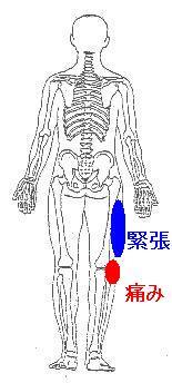 東京マラソン後の右膝の痛み