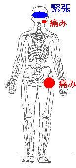右の顎関節症と股関節の痛み