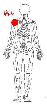 肩の痛みから発生した腕の付け根の痛み