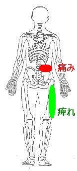 腰痛 右足の痺れ