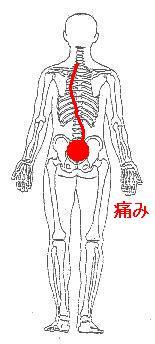 腰部椎間板ヘルニアを伴う慢性腰痛から急性腰痛の発生