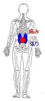 腰椎分離症を抱えた腰痛