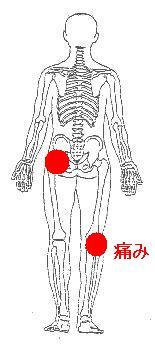歩くたびに痛い股関節の痛み