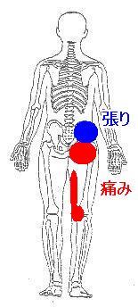 整形外科で異常なしと言われた股関節の痛み