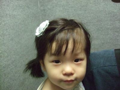 s-髪飾りアン子