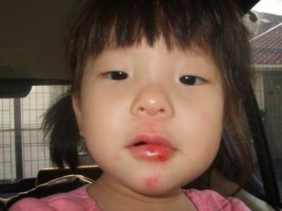 s-アン子さん負傷