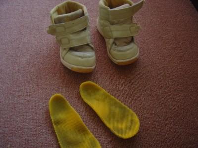内反足用の靴と中敷写真