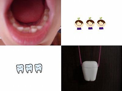 歯っ歯っ歯