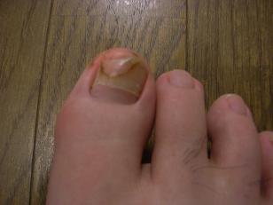 右足の親指
